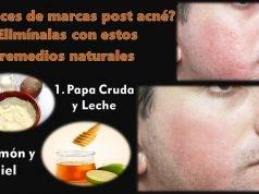 remedios naturales para las marcas del acne